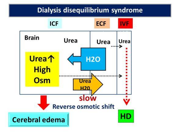 dialysisdisequilibriumsyndrome